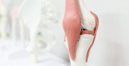 Kniearthroskopie